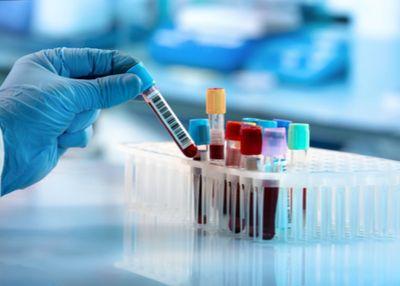 Respiratori i  zaštitna laboratorijska oprema u vrednosti od 4,9 miliona evra